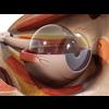 00 36 58 425 eye detail 3 4