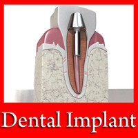 3D Model Dental Implant 3D Model