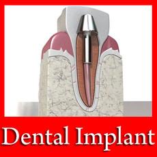 3D Model Dental Implant 3D Model