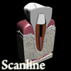 03 38 49 961 tooth   post preview 13 scanline.jpgf470f89f de32 4b68 9035 47c5ee671ff1larger 4