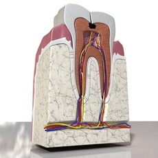3D Model Cracked Tooth High Detail 3D Model