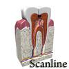 03 38 53 474 tooth   broken preview 11 scanline.jpg13679c83 5627 412d b539 24147ac5406flarger 4