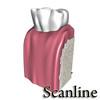 03 38 53 547 tooth   broken preview 12 scanline.jpg35d70b8a 1734 4a74 b3ec 076191b9698flarger 4