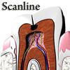 03 38 53 663 tooth   broken preview 13 scanline.jpg83f76f38 2d1f 4de8 8789 0200b4659372larger 4
