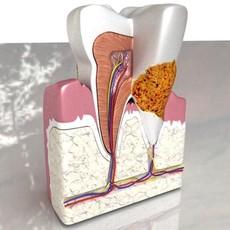 3D Model Tooth Dental Plaque High Detail 3D Model