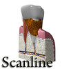 03 38 55 698 tooth   plaque preview scanline 12 copia.jpg39f2b790 c92b 43c8 a048 5b9f2e3ccfd4larger 4