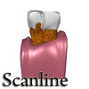 03 38 55 876 tooth   plaque preview scanline 14 copia.jpgf4a0eacb ca82 41d2 8e06 f4b94c188f0alarger 4