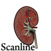 03 39 05 838 kidney   preview scanline 01.jpg8aea81e1 6b55 4d02 80ca 4a55b4dbbf79large 4
