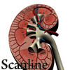 03 39 05 864 kidney   preview scanline 02.jpg9aea7693 000e 4ec0 90d1 1378a7b743c6large 4