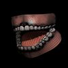 04 11 19 884 mouthwire 4