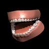 04 11 24 718 teeth 4