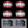 19 43 50 891 teeth 3q 4