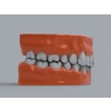 11 55 23 445 human teeth 05 4