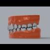 11 55 23 647 human teeth 06 4