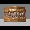 11 55 23 758 human teeth 07 4