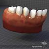 11 49 41 553 dl3d teethgums1 4
