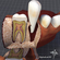 Teeth and Gums Anatomy 3D Model