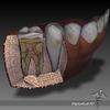 05 31 25 718 dl3d teethgumswireframe 4