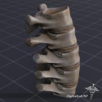 Human Lumbar Vertebrae 3D Model